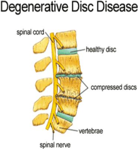 degenerative disc disease neurointerventional pain management
