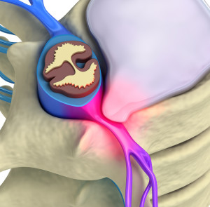 Sciatica Treatment NIPM