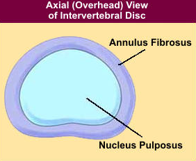 Normal Intervertebral Disc